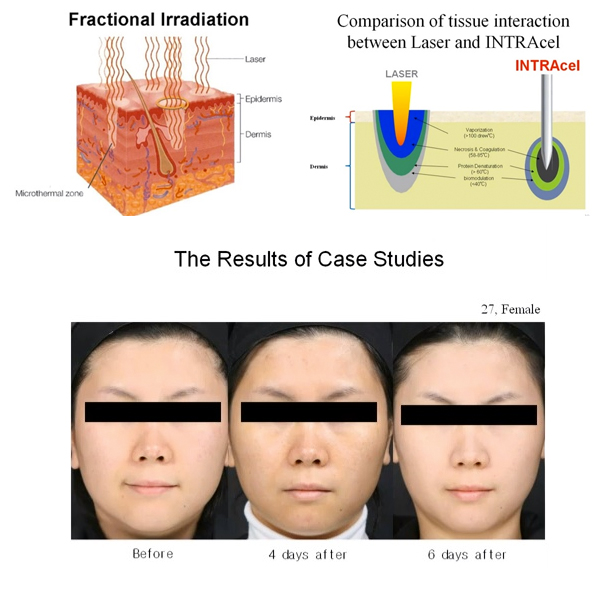 Fractional RF Treatment