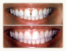 Teeth_bonding.jpg